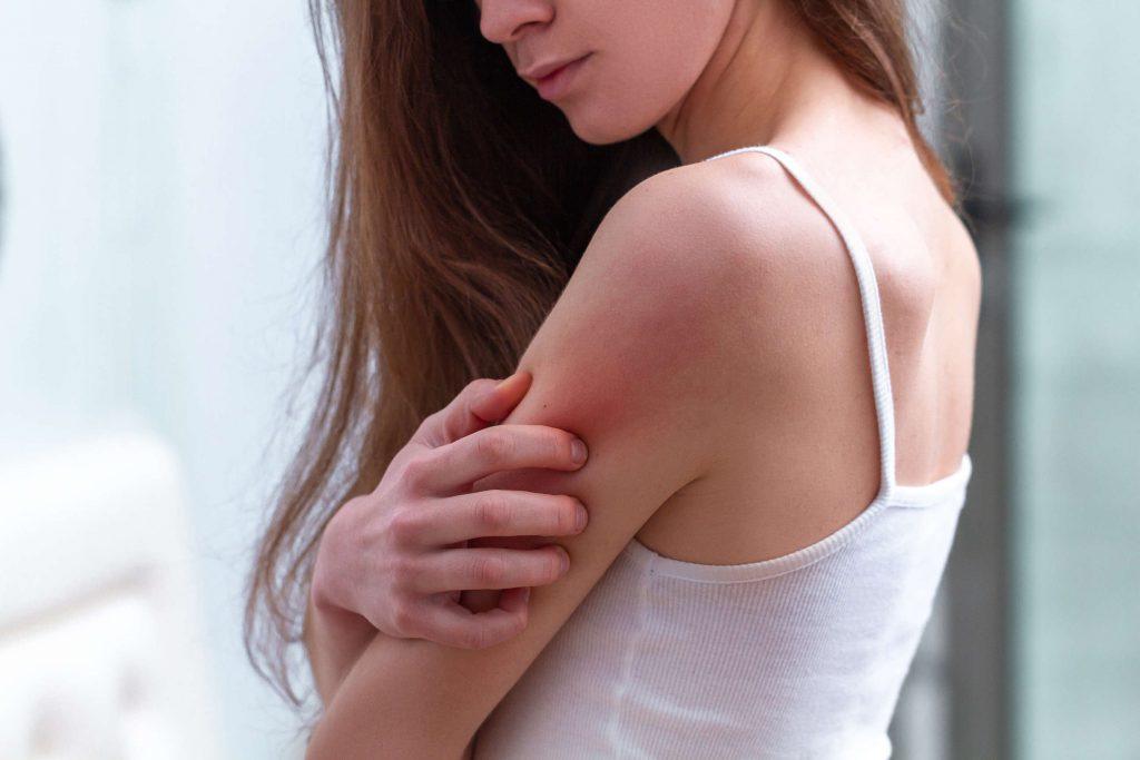 Imazol Plus: Krém na mykózy sprevádzané bakteriálnymi infekciami a zápalom kože