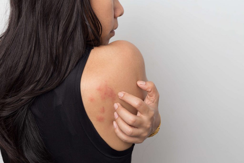 Dermazin 1 % krém: Krém na popáleniny, odreniny a rezné rany s infekciami