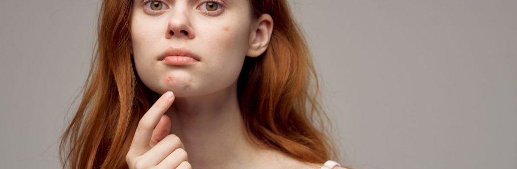 Viete, čo zaručene pomáha na akné? Tu sú tipy, čo funguje v puberte aj v dospelosti