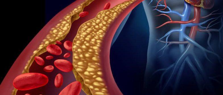 Čo pomáha a ako liečiť aterosklerózu? Tu sú overené možnosti, byliny aj dostupné lieky