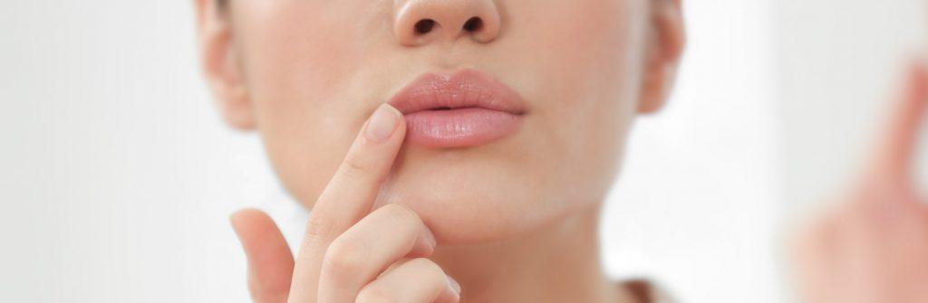 Čo je dobré na suché, popraskané a zapálené kútiky úst? 7 tipov, čo pomáha najviac
