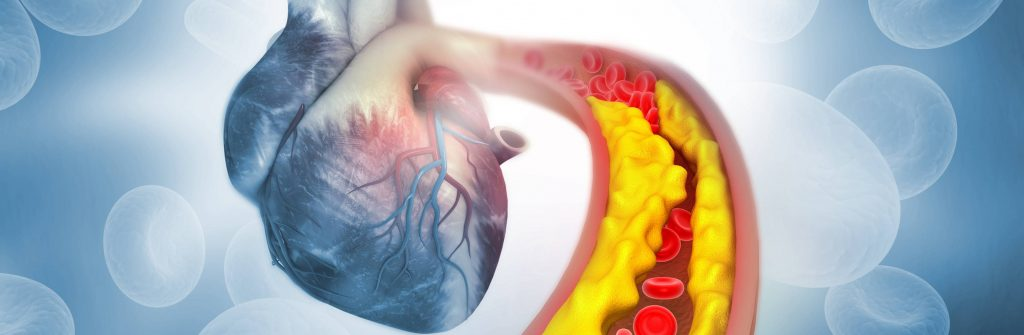 Aké príznaky má ateroskleróza dolných končatín, mozgu a srdca, jej prevencia a liečba