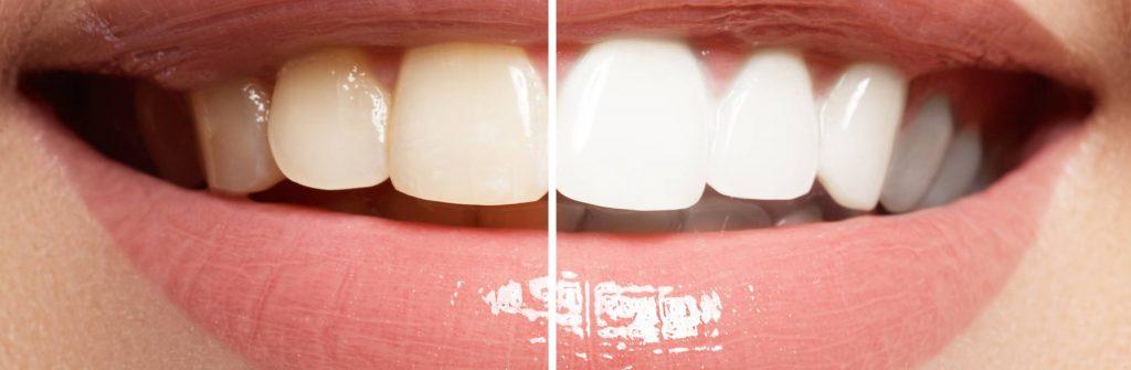 Pigmentové škvrny na zuboch môžu byť u detí aj dospelých. Ako ich odstrániť najlepšie?