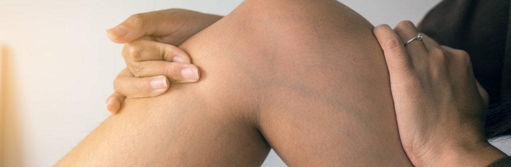 Pomáha na kŕčové žily na rukách, nohách, chodidlách alebo stehnách aj domáca liečba?