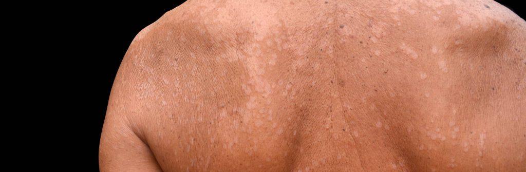 Trápia vás pigmentové škvrny na tvári, rukách, nohách či chrbte? Takáto je ich liečba