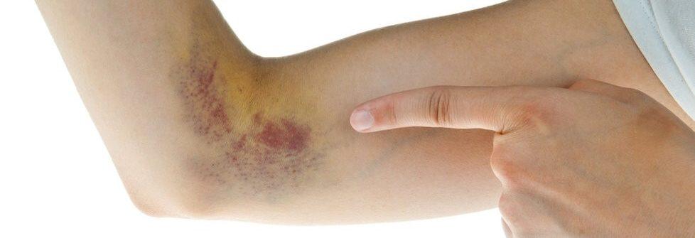 Čo znamenajú modriny na tele bez príčiny, aké hrozia komplikácie a čo domáca liečba