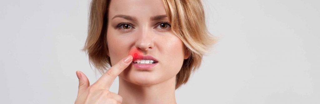7 odporúčaní a prostriedkov, čo zahŕňa prevencia proti herpesu a ako mu predchádzať