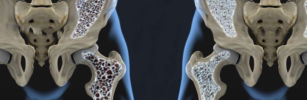 Prevencia osteoporózy nie je len o vápniku. Tu je 7 rád, ako jej najlepšie predchádzať